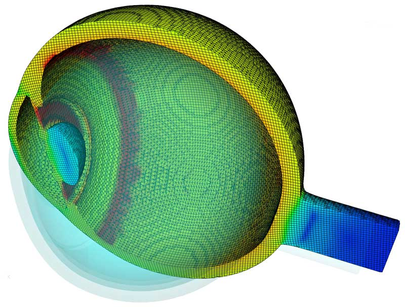 Biotechnology simulation of a human eye using FLOW-3D's fluid-structure interaction model